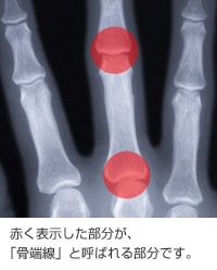 骨端線-min