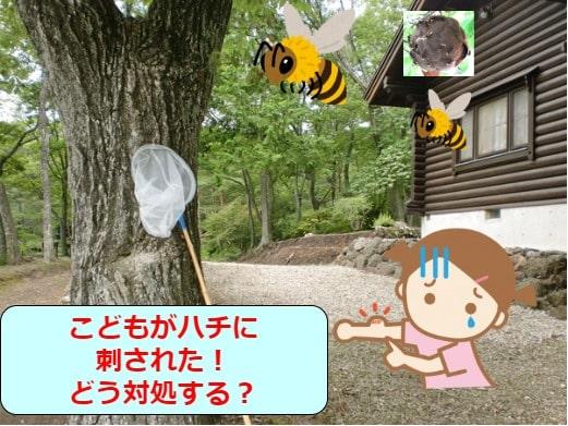 こどもがハチに刺された